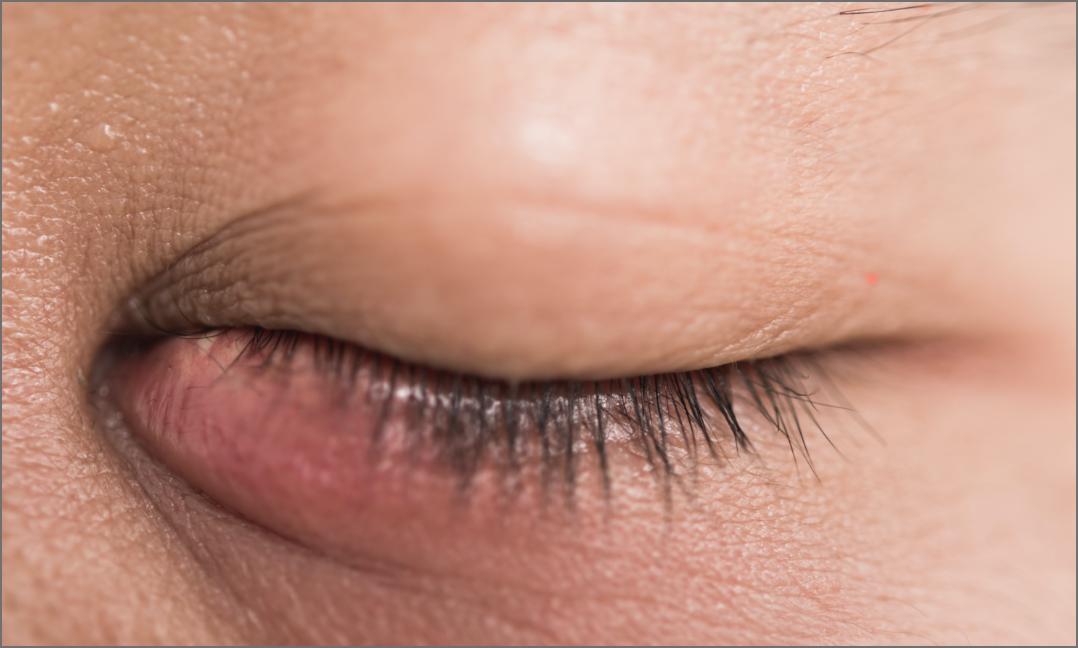 blepharitis látás)
